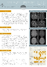Acute disseminated encephalomyelitis in adults